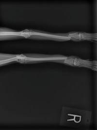 x ray new.jpeg